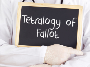 Tetralogy of Fallot & Life Insurance